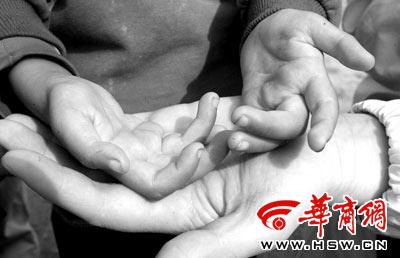 8岁男童患罕见怪病 手指蜷曲走路像仙鹤(图)